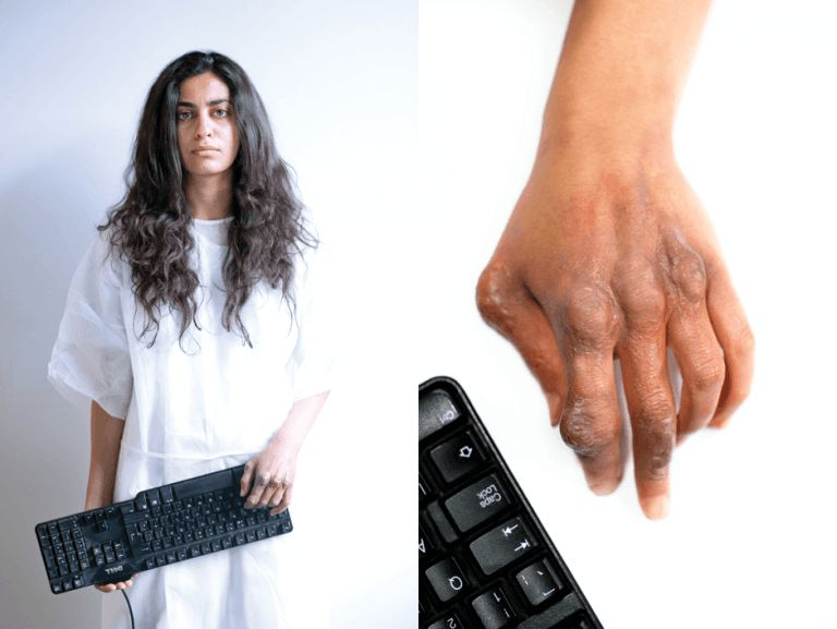 gaming injuries caused by keyboards