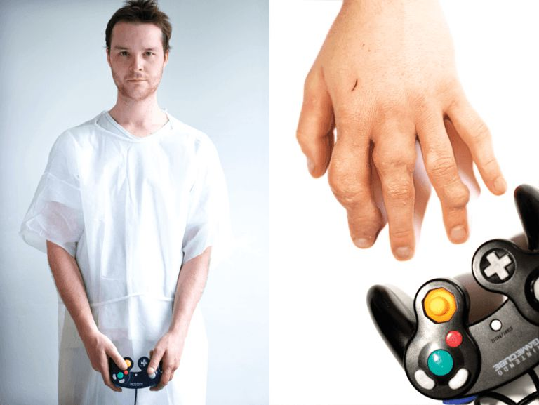 nintendo gaming injuries
