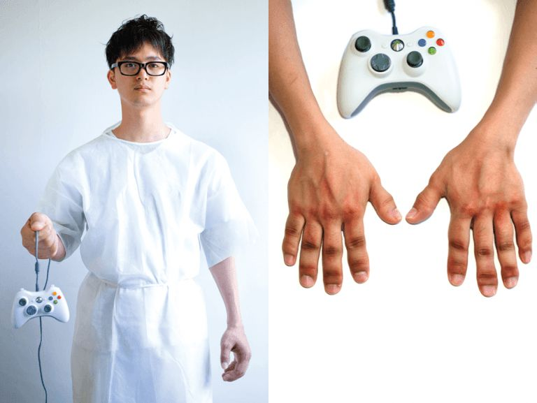 injuries caused by playing Xbox